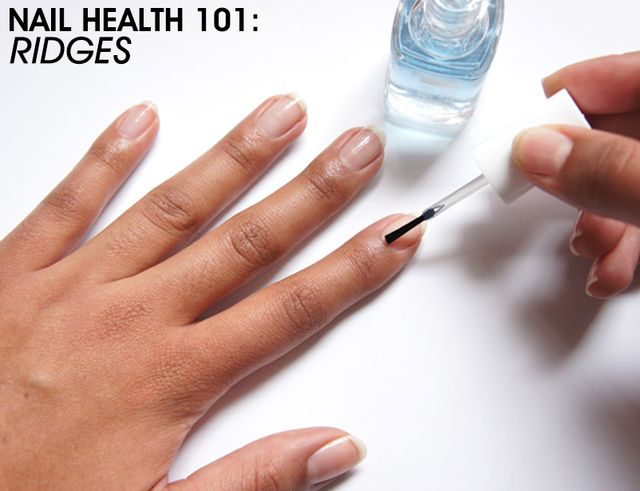 1000+ ideas about Ridges On Nails on Pinterest | B 12 ... B12 Deficiency Nails