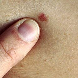 Skin Cancer Causes, Symptoms And Types