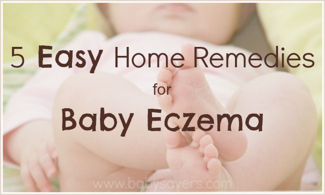 Baby Eczema Home Remedies for lil wee Henry, have a batch for him xx