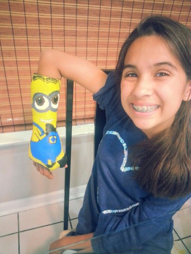 Minion Arm Cast Yup She Loves Them This Much Kids