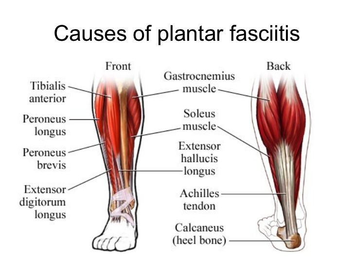 Causes of plantar fasciitis and  shoes for plantar fasciitis