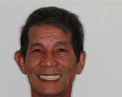 """""""I am very pleased with the services received; I can say that exceeded my expectations. The staff is very professional and welcoming. I advise everyone who has dental problems, as I had, to seek treatment at this clinic."""" S. Chheng, November 2013"""
