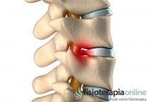 ¿Qué es una hernia discal lumbar? Síntomas, causas y tratamiento