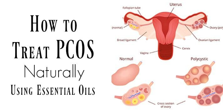 Learn how to use powerful essential oils to treat PCOS naturally, re-balance hormones, shrink existing cysts, and help prevent future cysts from forming.