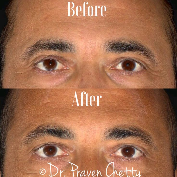 Botox by Dr. Praven Chetty for subtle brow elevation. #Botox #DrPravenChetty