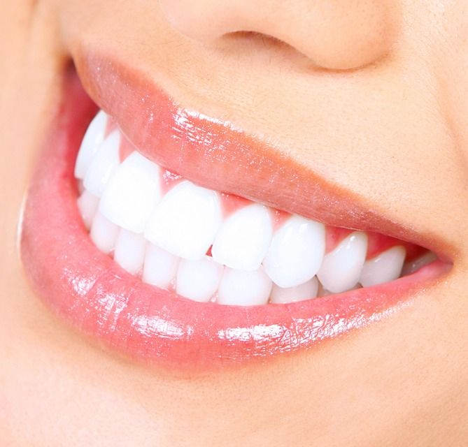 Best Teeth Whitening Method In Just 1 Day #Beauty #Trusper #Tip