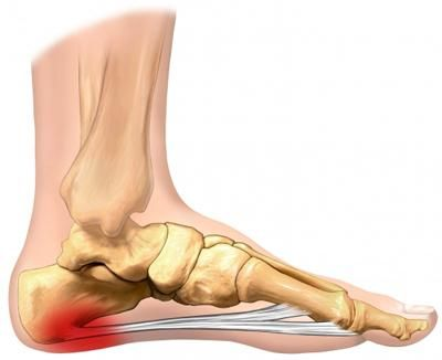 A great 3 step approach that may help with Plantar Fasciitis and heel pain for runners
