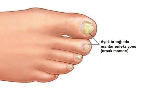 Mantar enfeksiyonları vücudun herhangi bir yerinde oluşabilir, ama en yaygın bölgeler el ve ayak tırnakları, ayaklar ve nem ve ısının olduğu bölgelerdir.