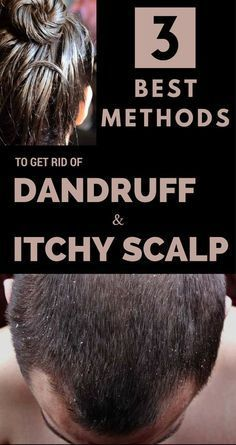 3 Best Methods to get rid of Dandruff and Itchy Scalp