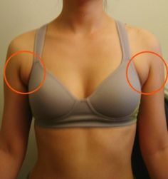 Good chest (/back) exercises to gain muscle and reduce appearance of these