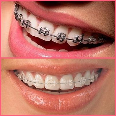 """Now, you have decided to carry on with orthodontic treatment. Are you still mixed up between metal or ceramic braces?  Their only difference lies in aesthetics and cost. Ceramic braces are often favored by patients for their appearance because they are """"tooth-coloured"""" and therefore, less obvious than metal braces. However, ceramic braces tend to be more expensive than metal braces.  No matter which type of braces you choose, the end result will still be the same – a nicer, more confident…"""