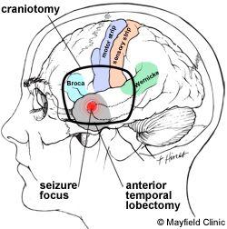 Epilepsy surgery via laser: http://www.foxnews.com/health/2015/11/19/laser-surgery-prevents-young-mans-epileptic-seizures.html?intcmp=hphz02