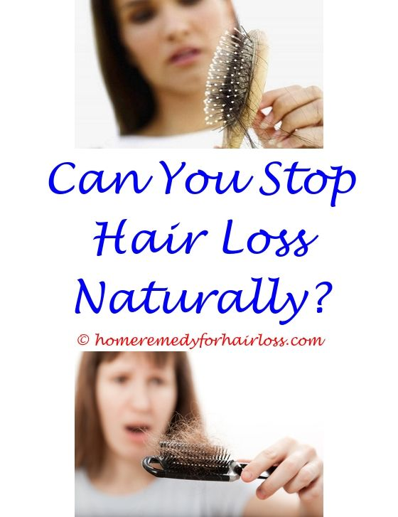 14 best Hair Loss 14 images on Pinterest