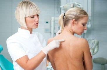 Лечение красного плоского лишая у человека. Медикаментозные и народные средства от красного плоского лишая