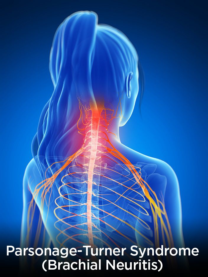 parsonage-turner syndrome (pts) is a condition affecting group of, Skeleton