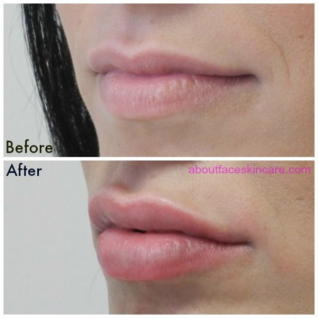amateur Collagen lips