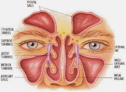 Despre sinusuri si cum sa tratam naturist sinuzita