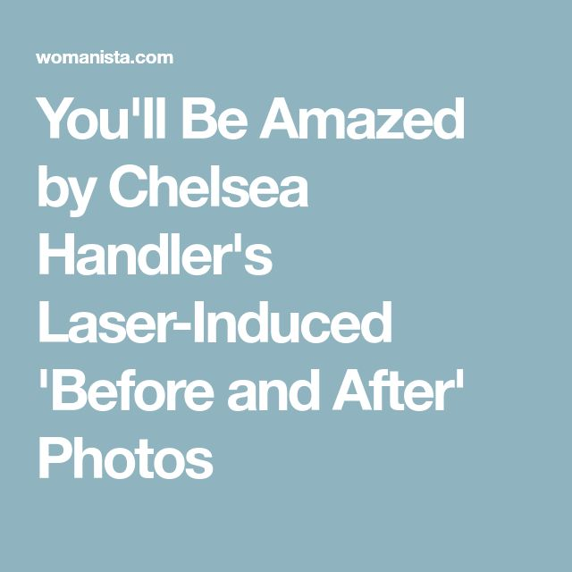 You'll Be Amazed by Chelsea Handler's Laser-Induced 'Before and After' Photos
