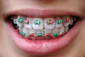 Types Of Braces For Teeth – Teeth Straightening Options http://emergencydentalcaretips.com/types-of-braces-for-teeth-teeth-straightening-options/ what type of braces work the fastest braces for teeth price list ceramic braces cost traditional braces braces price metal braces cost teeth braces cost braces brackets
