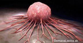 Tajomstvo odhalené: Rakovina nie je choroba, ale biznis. Takto s ňou zatočíte