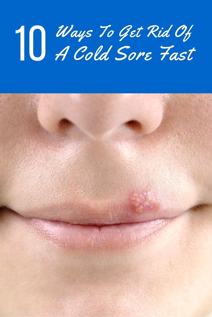 10 Fast Easy Step By Step Makeup Tutorials For Teens 2018: 10 Ways To Get Rid Of A Cold Sore Fast