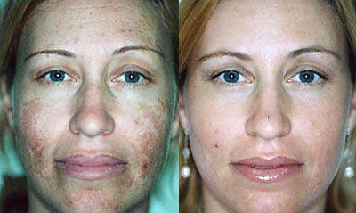 Microdermoabrasión casera para eliminar, manchas, acné, cicatrices y arrugas en 1 día!!!