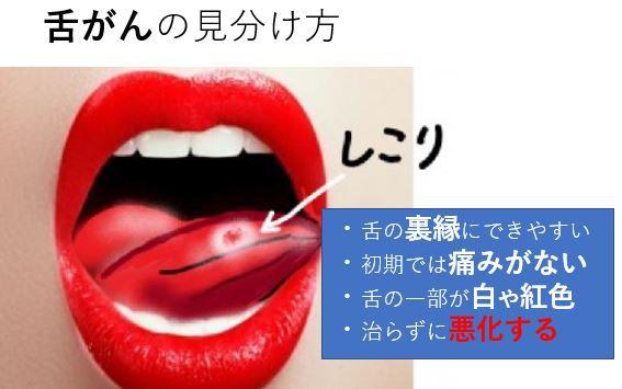 舌癌と口内炎の違い 2020 膿栓 口臭 口腔ケア