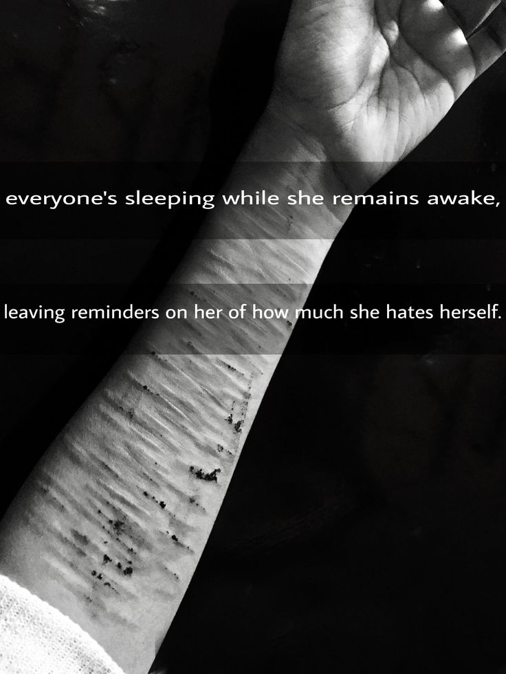 Depression Cutting Quotes: 18 Best Self Harm Images On Pinterest