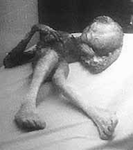This is a pretty good picture of an alien lying on what appears to be a hospital bed. The body is in a pretty strange position like it was just thrown onto the bed recklessly, but the main thing we noticed were the feet and toes of the creature and how similar they appear to be to our own yet still different. Zooming in it looks like they may be something like toes.