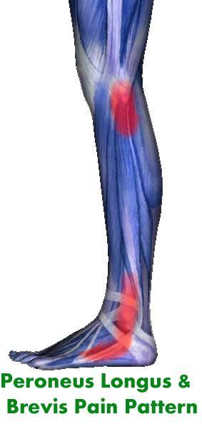 peronaus longus and pernaus brevis | Peroneus Longus and Peroneus Brevis Muscles: Low Leg, Ankle, Foot Pain ...