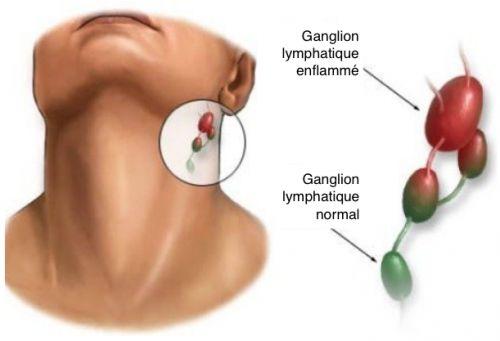 Pourquoi les ganglions s'enflamment-ils ? Comment traiter ce mal ?  Les ganglions enflammés qui se développent tout à coup et qui sont douloureux peuvent indiquer une infection ou un autre type de lésion, comme un rhume, un ulcère buccal, une amygdalite, une infection des oreilles, etc...
