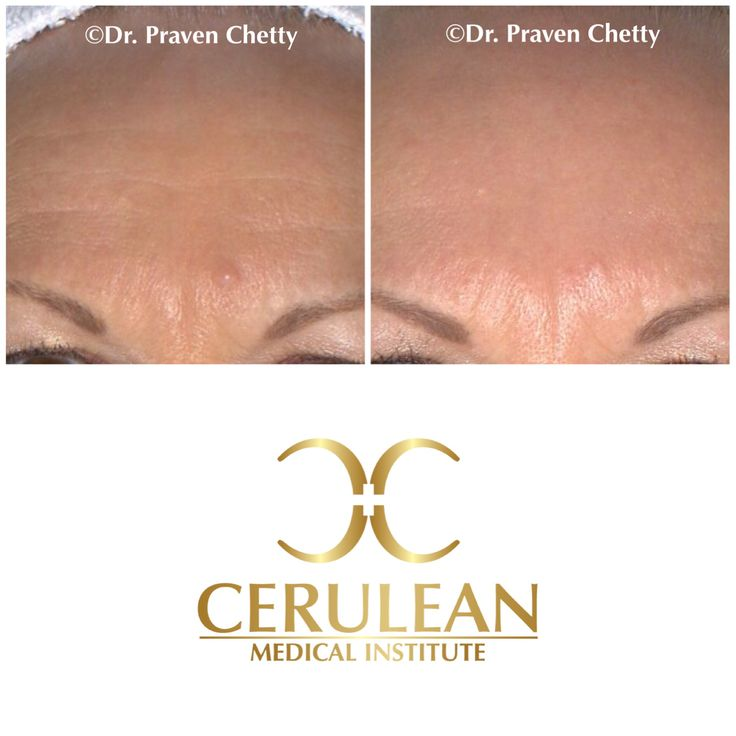 Kelowna Botox by Dr. Praven Chetty at Cerulean Medical Institute. #Botox #Wrinkles #AntiAging #DrPravenChetty #CeruleanMedicalInstitute #Kelowna