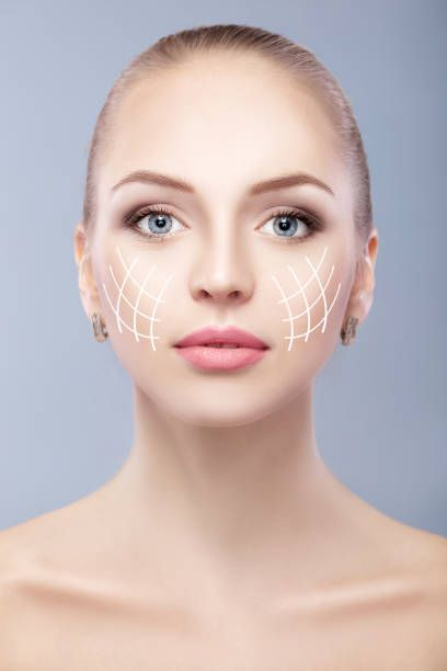 spa portrait of attractive woman with arrows on face face lifting
