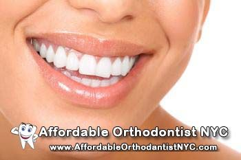 Best Invisalign Orthodontist In NYC  http://www.youtube.com/watch?v=bpZLDg7O3ss  we treat you quickly and affordably and guarantee to leave you smiling.  Best Invisalign Orthodontist In NYC