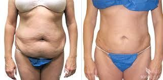 liposuction before and after – Google Search – #Google #Liposuction #Search