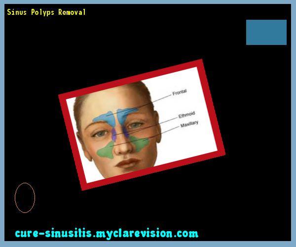Sinus Polyps Removal 080119 - Cure Sinusitis