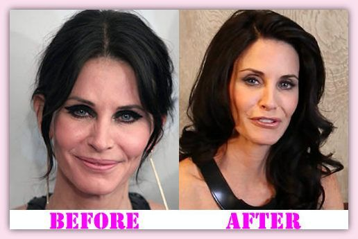 Courteney Cox Plastic Surgery Before And After  #CourtneyCoxplasticsurgery #CourtneyCox