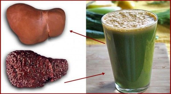 cleanse fatty liver