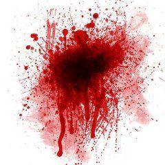 HUKUMNYA DARAH YANG KELUAR DARI TUBUH  Pertanyaan:  Fadhilatusy syeikh apakah darah yang keluar dari tubuh adalah najis dan apakah wajib melepaskan pakaian ketika menunaikan shalat ?  Jawab:  Darah yang keluar dari tubuh jika ia keluar dari dua jalan yaitu qubul atau dubur maka ia adalah najis; sebab Nabi shallallahu alahi wasallam memerintahkan wanita di dalam haid untuk mencuci darah haid.  Dan jika ia keluar dari bagian yang lain dari tubuh seperti mimisan dan luka dan yang semisalnya…
