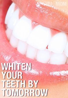 Who doesn't want bright, white teeth?