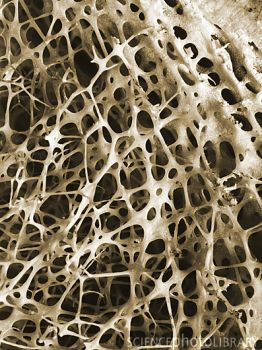 SEM of cancellous bone of the human shin.