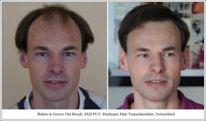 Surgical Hair Restoration With Progressive Levels Of Hair Loss