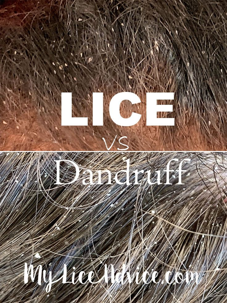 Lice Vs Dandruff 7 Key Differences Between Lice Eggs And Dandruff Lice Eggs Kill Lice Kill Lice Eggs