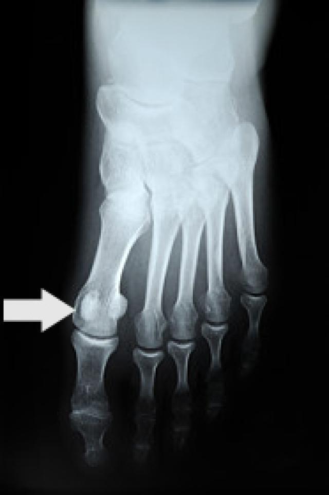 Sesamoiditis - Big Toe Joint Pain