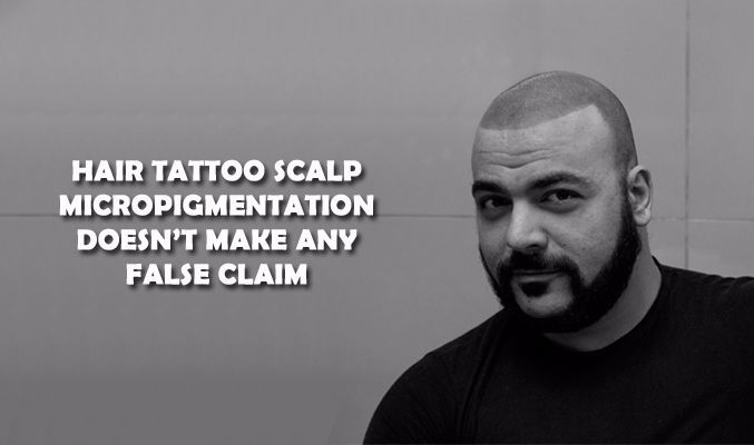 Here are some of the noteworthy benefits of hair tattoo scalp micropigmentation that you need to know about in details.