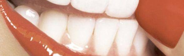 Πώς να κάνετε λεύκανση δοντιών …μόνοι σας!