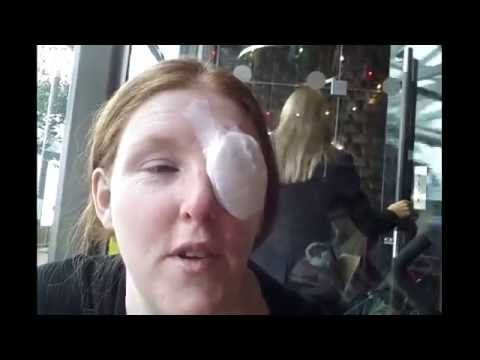 My 2nd Successful Chalazion/Meibomian Eye Cyst Operation and here is my journey x
