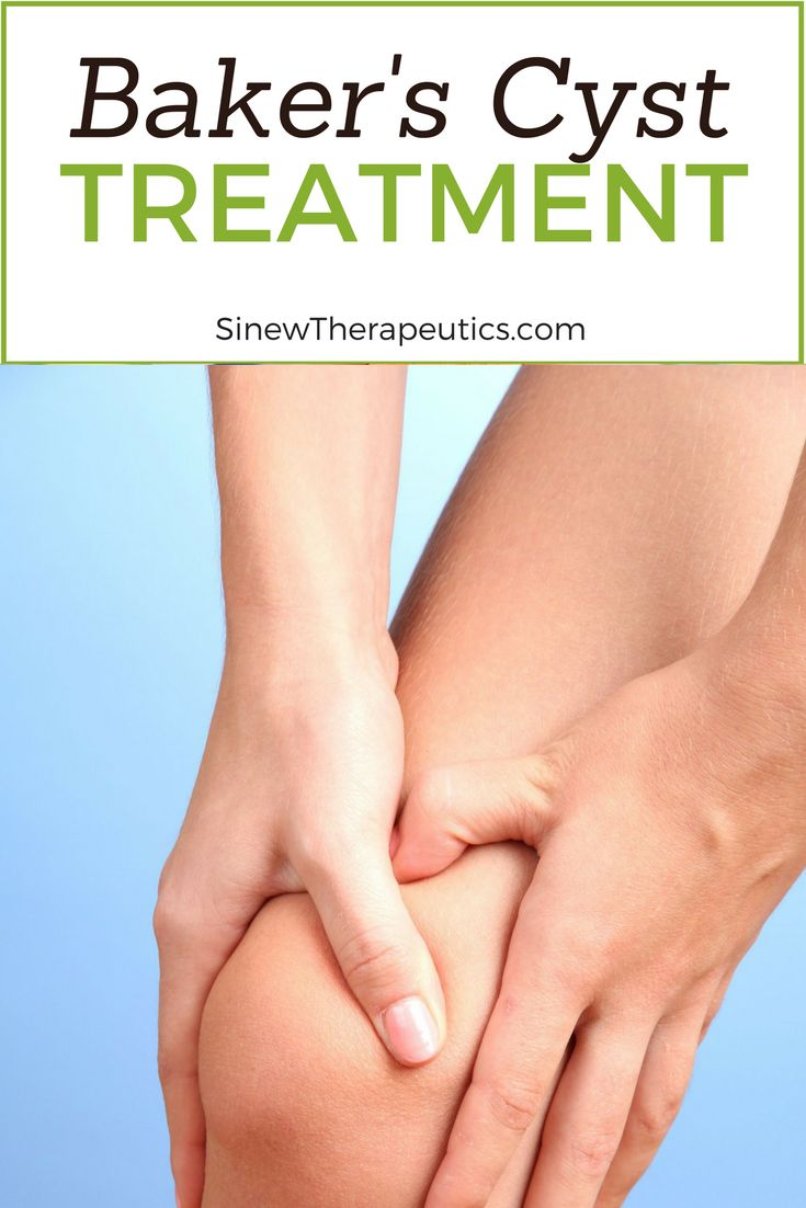 Baker's Cyst Treatment - If you have visible swelling, apply the Sinew Herbal Ice on the area to reduce redness, swelling, and inflammation while dispersing accumulated blood and fluids to help restore normal circulation to the ankle. This first-aid treatment is used in place of ice to significantly speed up the healing process. Learn more at SinewTherapeutics.com
