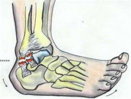 Symptoms of sprained ankle or torn ligament !