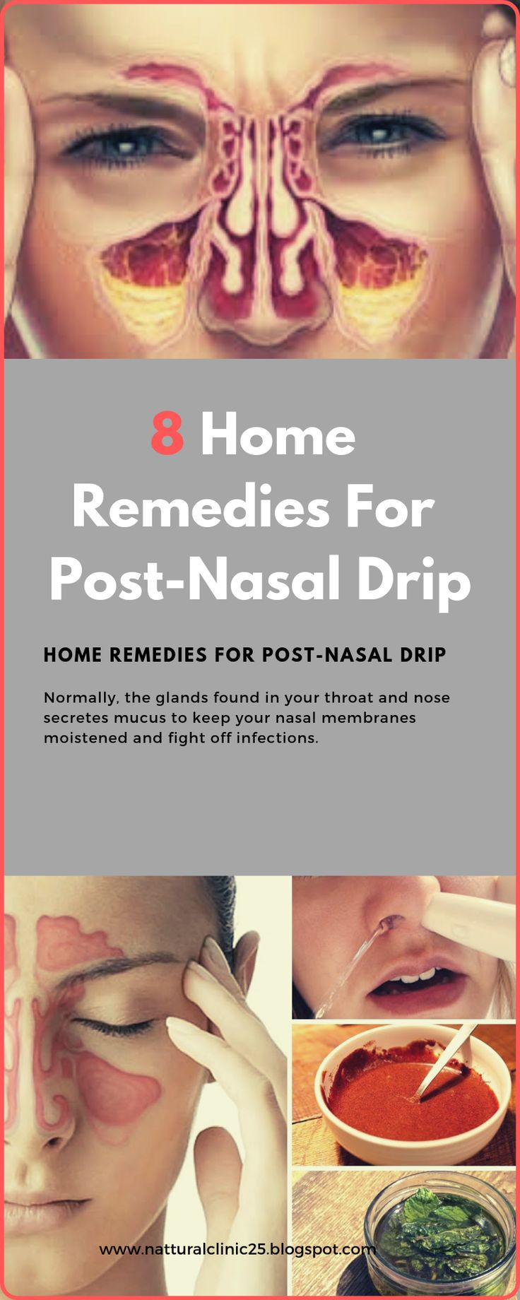 8 home remedies for postnasal drip remedies herbal